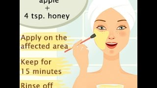 How To Avoid Pimples On Face Naturally Video [Updated]