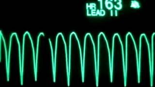 Kardiyak Arrest EKG'si ve Asistol Sesli