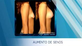 AUMENTO DE SENOS - ANTES Y DESPUÉS - DR. EDGAR TORRES - CIRUJANO PLÁSTICO