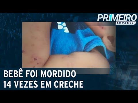 Família de bebê mordido 14 vezes em creche particular contesta decisão | Primeiro Impacto (19/07/21)