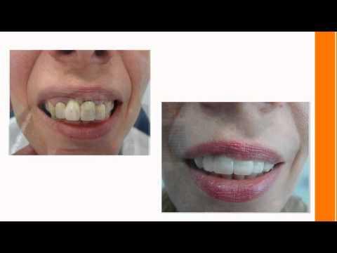 Platin Diş Kliniği | Yüksel TONGEL | Estetik Diş