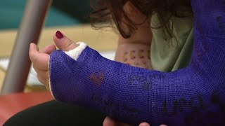 Waterproof casts saving summer for local kids