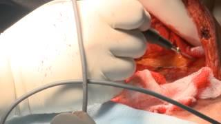 Что может исправить адбоминопластика