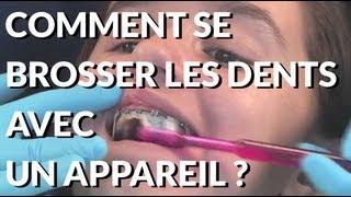 Comment se brosser les dents avec un appareil dentaire ? Appareil-dentaire.info
