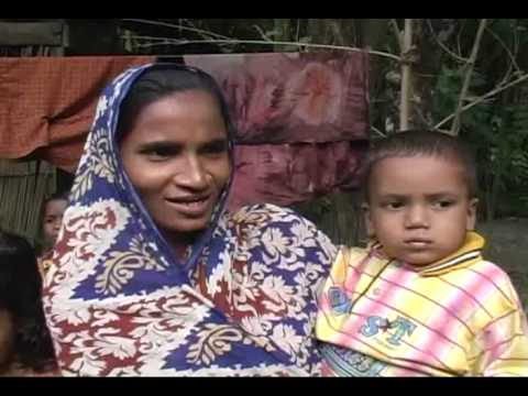 Cleft Treatment in Bangladesh