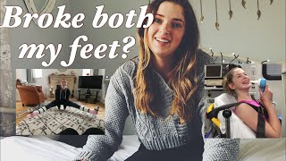 How both of my feet ended up in casts | ACTUAL FOOTAGE