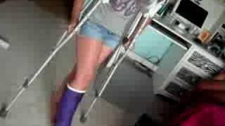 Purple leg cast SLC