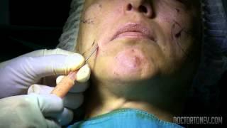 Суть процедуры липофилинга в области лица