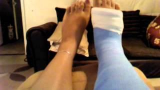 Broken foot (5th metatarsal) swelling vlog