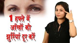 एक हफ्ते में आँखों की झुर्रियां दूर करें Home Remedies For Wrinkles On Under Eyes - Beauty Tips width=