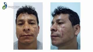 Testimonio Paciente – Tratamiento de Cicatrices con Láser de CO2 Fraccionado – Clínica Vásquez Lapel