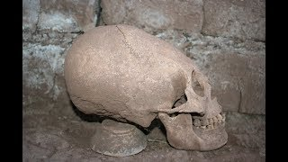 Mystery Of Akhenaten And The Elongated Skulls Of Peru: DNA Results In Full
