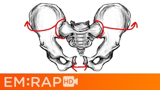 Bad Pelvic Fractures