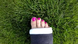 Jessie's toes in a black cast