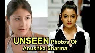 Anushka Sharma SHOCKING Modelling Photos LEAKED