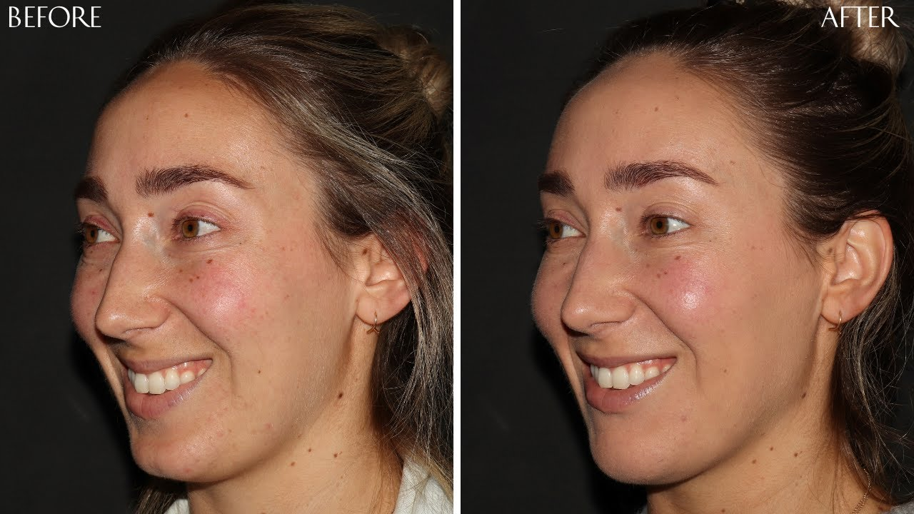 Preview of Dermal filler and Botox Cosmetic®: Meghan 29 y.o.