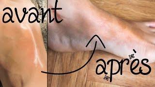Cicatrices : elles peuvent PARTIR et voici comment !! (vergetures, acnés, blessures…) - 🌸179