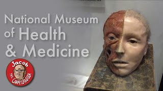 Lincoln's Skull Fragments plus Endless Horror - National Museum of Health and Medicine