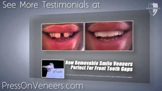 Cover Front Teeth Gaps with Press On Veneers