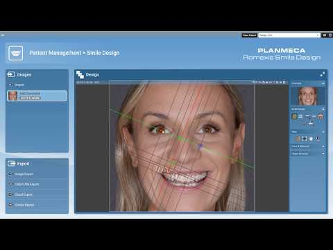 5.3. Smile Design - New photorealistic tools
