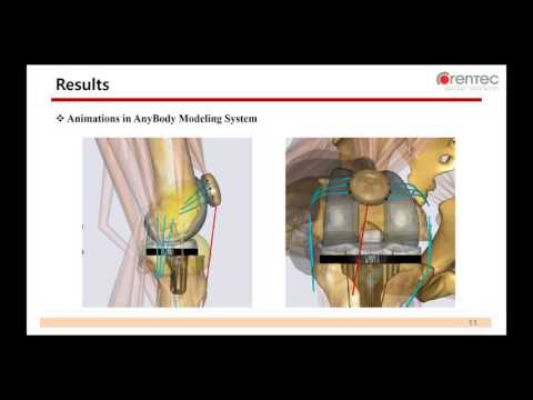 [Webcast] - Contact Forces and Kinematics of Total Knee Arthroplasty During Squatting