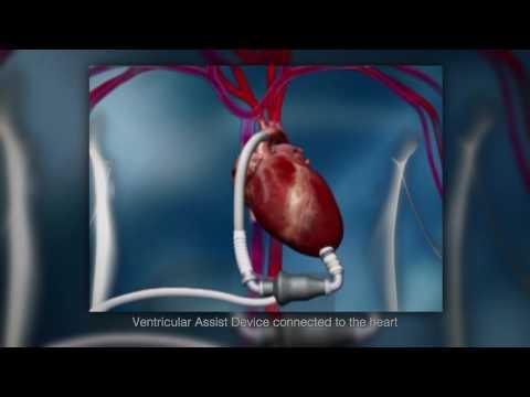 Wellspan Heart & Vascular Physician Video