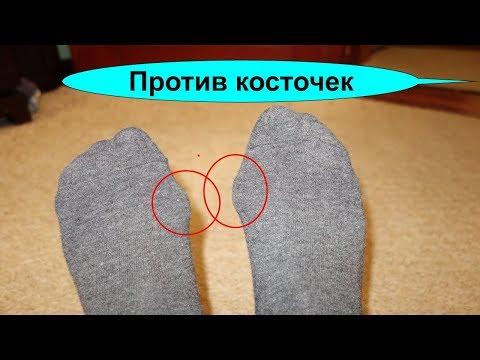 Косточка на большом пальце ноги как уменьшить эту болящую шишку photo