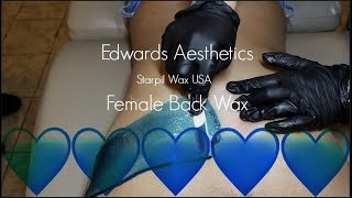 Edwards Aesthetics | Female Back Wax | Starpil BLUE