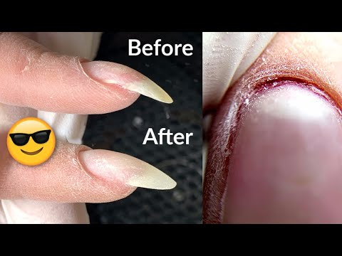 How to fix a Curved Nail | Manicure Transformation