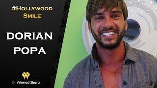 Dorian Popa - Hollywood Smile - Dr. Ahmad Jbara