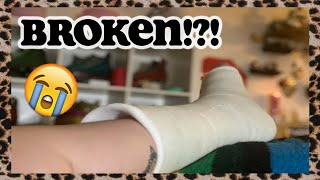 I BROKE MY LEG (FIBULA) ROLLER SKATING