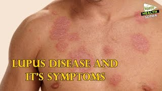 Lupus Disease and it's Symptoms - Health Sutra