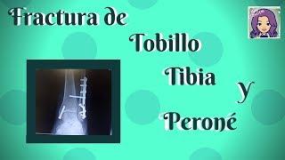 Accidente FRACTURA DE TOBILLO, tibia y peroné - MISS CLASECITAS ♥ -