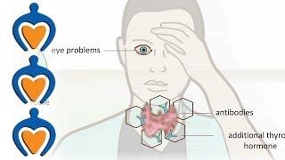 Thyroid Problems?