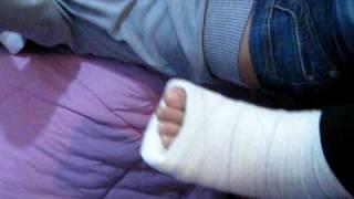 pé quebrado ariane