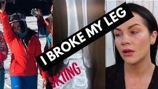 I BROKE MY LEG - STORY SO FAR | Grainne McCoy