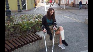 Blanca summer leg cast, walk on crutches SLC