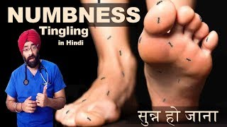 NUMBNESS & TINGLING | सुन्न हो जाना  | Loss of Sensations | Explained in Hindi by Dr.Education