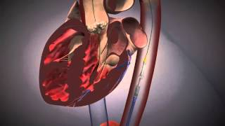 Cardiologie - TAVI Procedure EdwardsXT