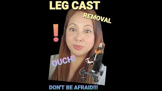 Leg Cast Removal!!! Don't be scared!