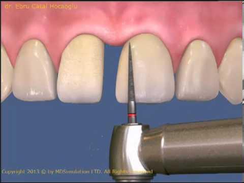 Aralıklı dişlerin porselen lamine ile kapatılması