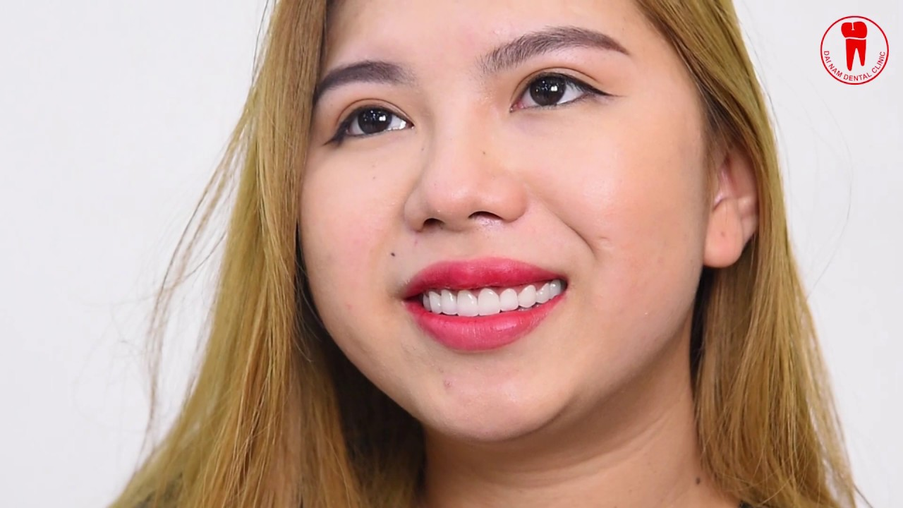 Khách hàng Ly LY chia sẻ sau khi làm răng sứ tại Nha khoa Đại Nam TPHCM