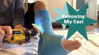 Cast Removal Practice on a Short Leg Walking Cast