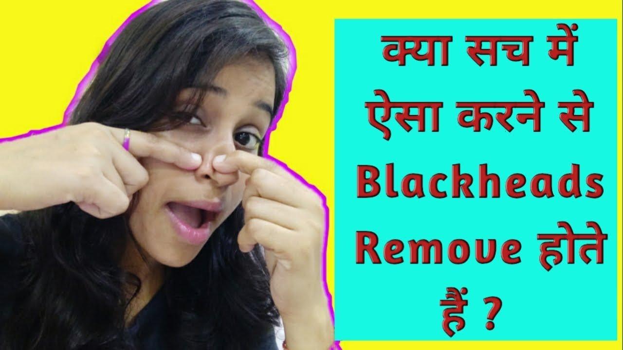 Blackheads On Nose Youtube
