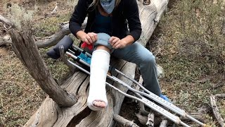 Broke My Ankle Backpacking...Ep. 1