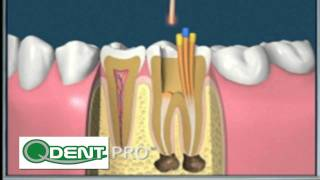 endodoncia y funda de porcelana.mp4