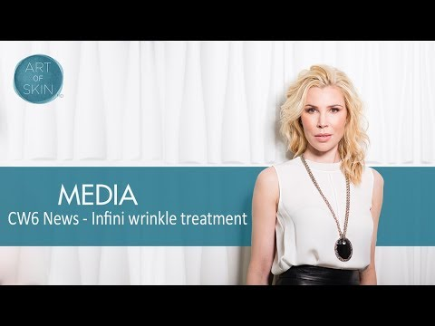 Wrinkle Treatment with INFINI using Microneedling Radiofrequency