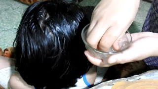 How to prevent hair loss & dandruff naturally