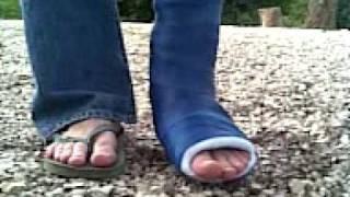plâtre - slc cast and clean feet