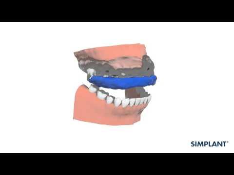 Verwendung der SIMPLANT Schablone (SIMPLANT Guide)
